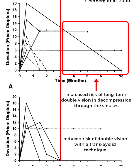 orbital decompression and double vision