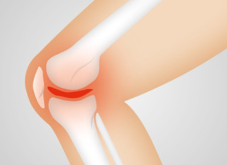 Yoga Therapy for Osteoarthritis