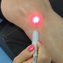 laserterapia e acupuntura com laser