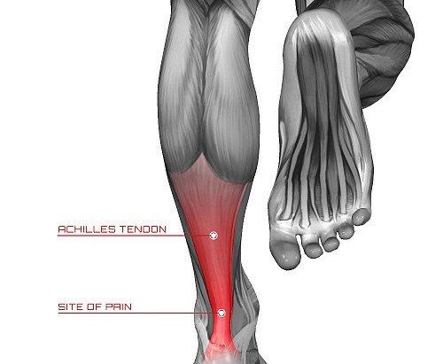 Managing Tendon Pain