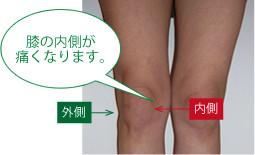 膝痛の原因はそこだった?岡山市膝痛整体