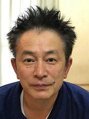 くわの鍼灸院 小顔 男 変化 3