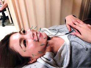 くわの鍼灸院 美顔鍼 美容鍼