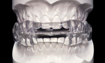 oral-appliance-0820.jpg
