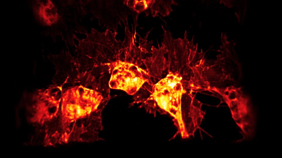 Drosophila hemocytes