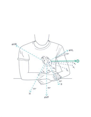 Illustration montre Withings, coeur, heart