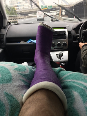8 weeks - The ups and downs of being in cast!