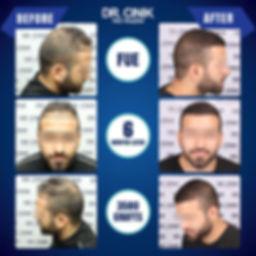 Resultat 6 mois greffe de cheveux FUE