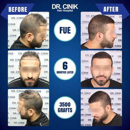 Result at 6 months FUE hair transplant