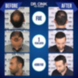 Resultat 1 an greffe de cheveux FUE