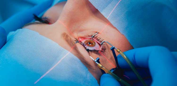 Chirurgie réfractive Lasik : Quelle procédure ?