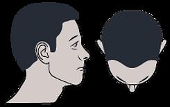BODY EXPERT - tarifs Micropigmentation cheveux - Alopécie legère1
