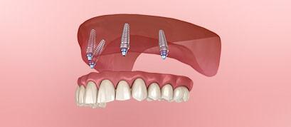 Treatment removable denture Body Expert