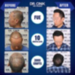 Resultat 10 mois greffe de cheveux FUE