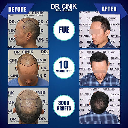 Result at 10 months FUE hair transplant