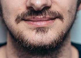 Changement de la forme de la barbe : indication pour greffe de barbe