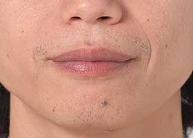 Sakal yokluğu: sakal aşılama endikasyonu