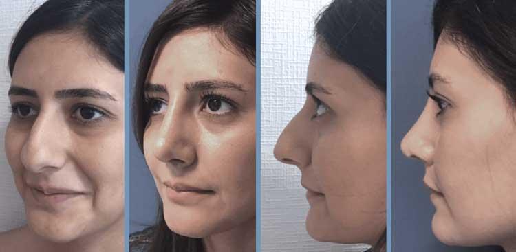 Rhinoplastie en Turquie : Avant - Après Femme