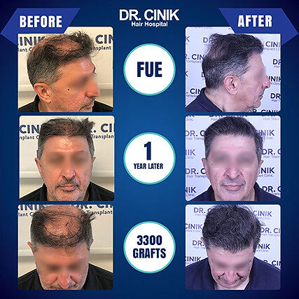 Result at 1 year FUE hair transplant