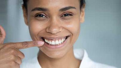 """Chirurgie esthétique du sourire : traiter le sourire gingival, ou """"gummy smile"""""""