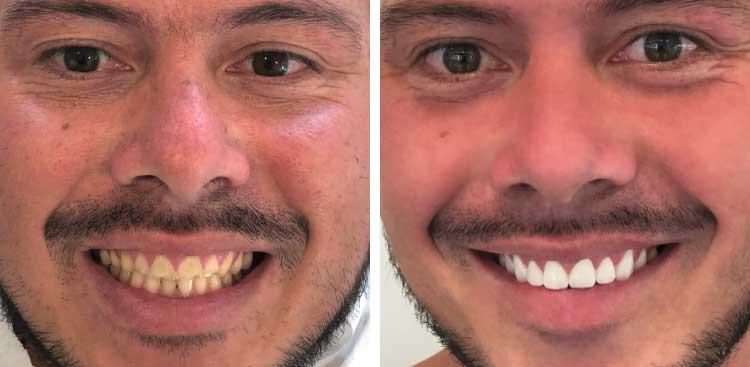 Pose Facette dentaires EMAX avant / après