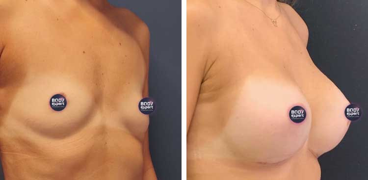 Augmentation mammaire en Turquie : Avant - Après