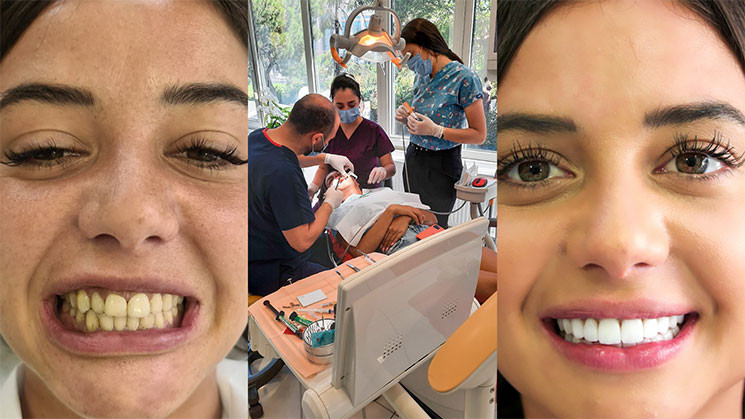 Soins dentaires et pose des facettes pour Julie Bertin par BodyExpert
