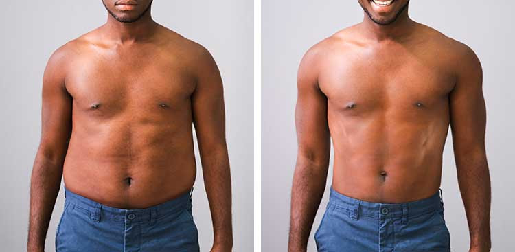 Liposuccion + Abdominoplastie en Turquie : Avant - Après