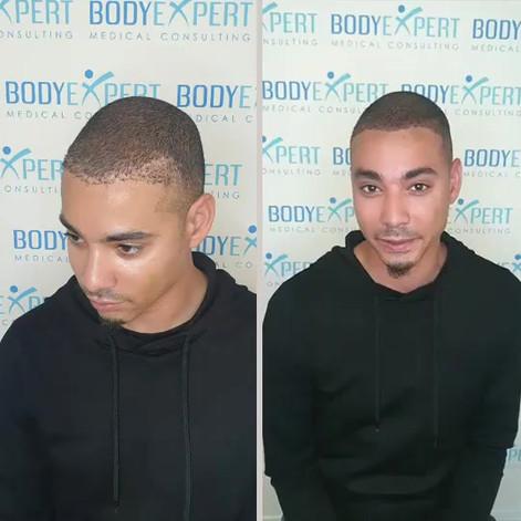 BodyExpert Testimonial Micropigmentation