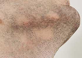 Trous dans la barbe : indication pour greffe de barbe