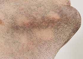 Sakaldaki delikler: sakal aşılama endikasyonu