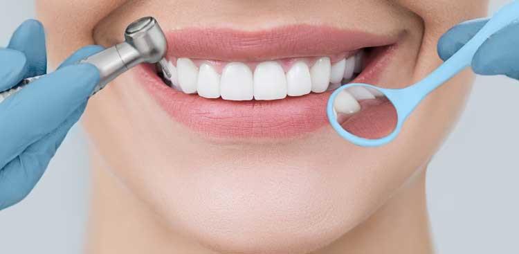 les avantages des facettes dentaires Lumineers