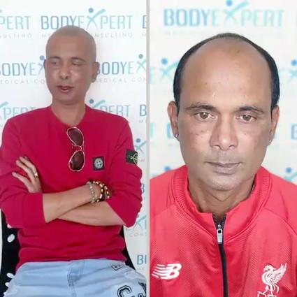 BodyExpert Testimonial Micropigmentation 02