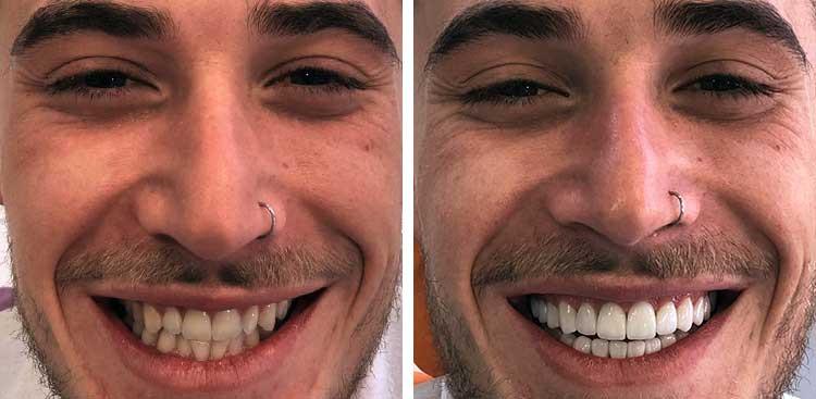 Facette Emax avant - après