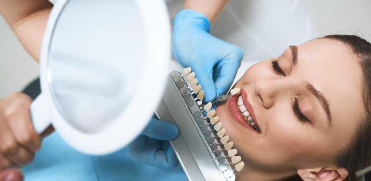 le prix d'une facette dentaire Emax ?