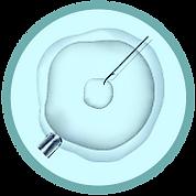 ART Türleri: Türkiye'de Vücut Uzmanı ile Intrasitoplazmik Sperm Enjeksiyonu (ICSI)