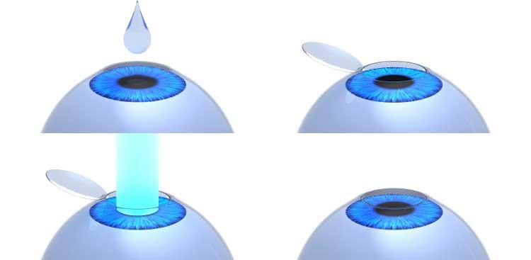 Le principe de la Lasik est d'intervenir sur la cornée en corrigeant ses défauts qui entraînent les différents troubles visuels. Grâce au laser excimer, le chirurgien va remodeler l'épaisseur de la cornée, en intervenant sur le tissu transparent cornéen, constitué de deux couches : le stroma et l'épithélium. Le stroma, qui compose 90% de la cornée, est constitué de lamelles de collagènes qui donnent la résistance, la transparence et la forme galbée du tissu cornéen. L'épithélium couvre la cornée, permettant au film lacrymal de s'y étaler. Celui-ci est partiellement retiré, soit par microkératome, soit par laser femtoseconde, afin que le chirurgien puisse procéder à la sculpture du stroma, avec le laser excimer. Les défauts de la cornée ainsi corrigés, le patient va retrouver une vision parfaite, d'environ 20/40.