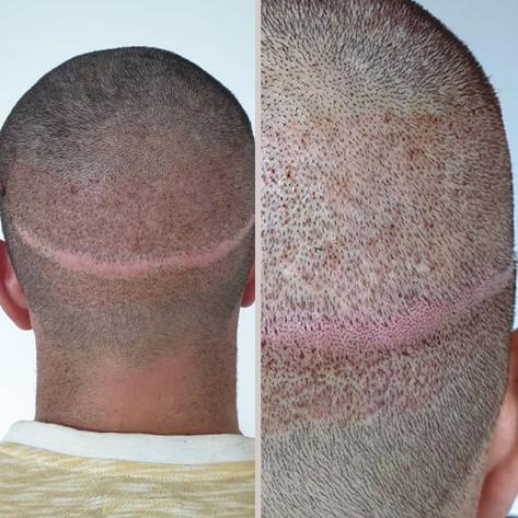 Photo-04-Micropigmentation-BodyExpert