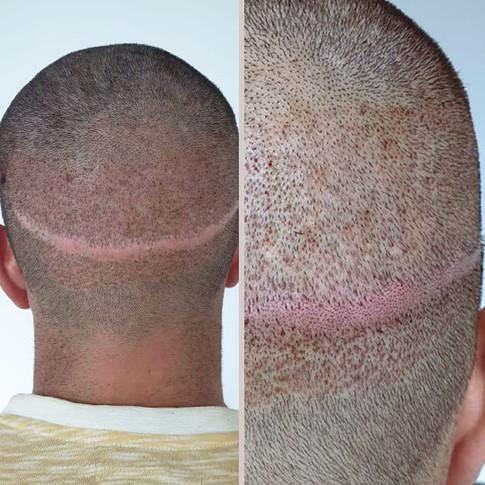 Photo-04-Micropigmentation-BodyExpert.jpg