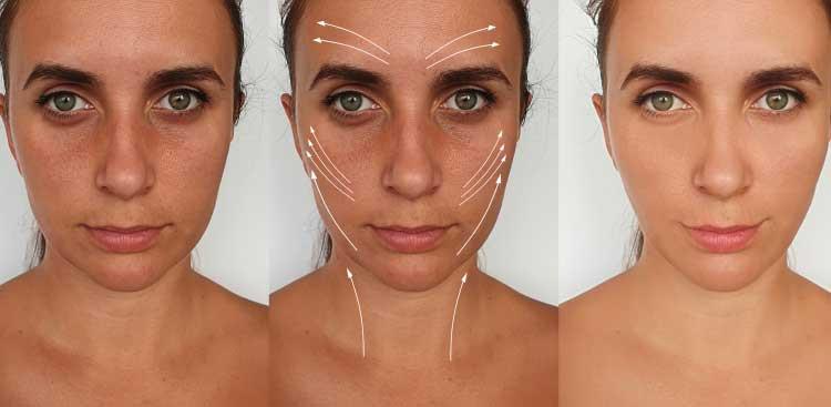 Photos avant après bichectomie + injections botox + soins beauté