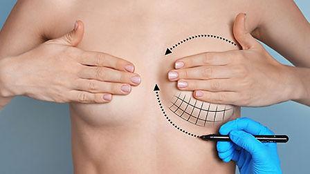 Augmentation mammaire en Turquie