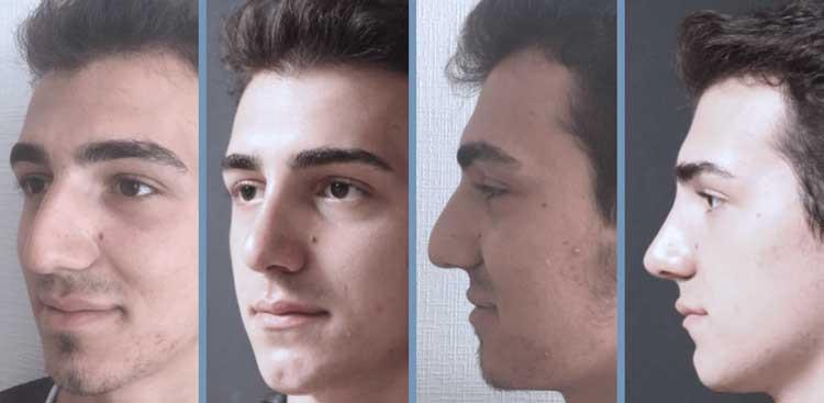 Rhinoplastie en Turquie : Avant - Après Homme