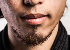 Pilosité non homgène : indication greffe barbe