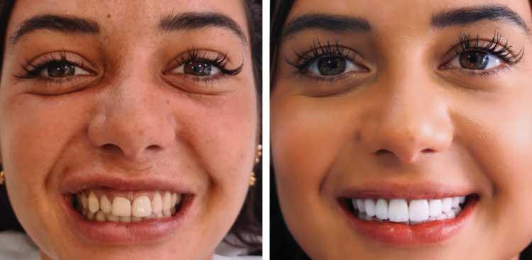 Facette dentaires EMAX avant / après