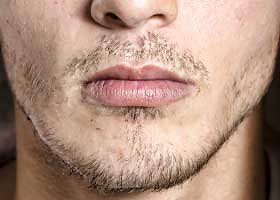 Clear beard: indication for beard grafting