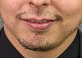 No moustache: indication for beard grafting