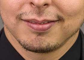 Bıyık yok: sakal ekimi endikasyonu