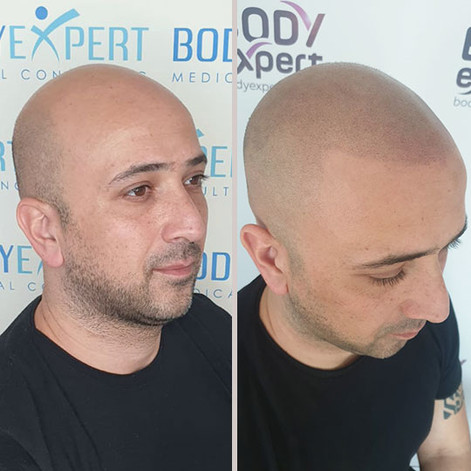 Photo-03-Micropigmentation-BodyExpert