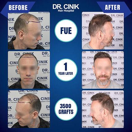 Result at 1 year FUE hair transplant