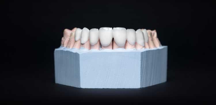 les inconvénients des facettes dentaires Lumineers